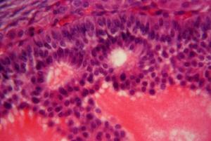 Antes das Células Tronco