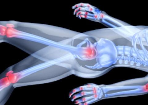 Dores nas Juntas por Osteoartrite ou Artrose