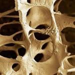 Osteoporose e exercícios para Idosos