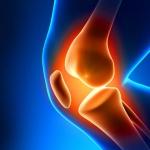 Glicocorticóides para Artrose