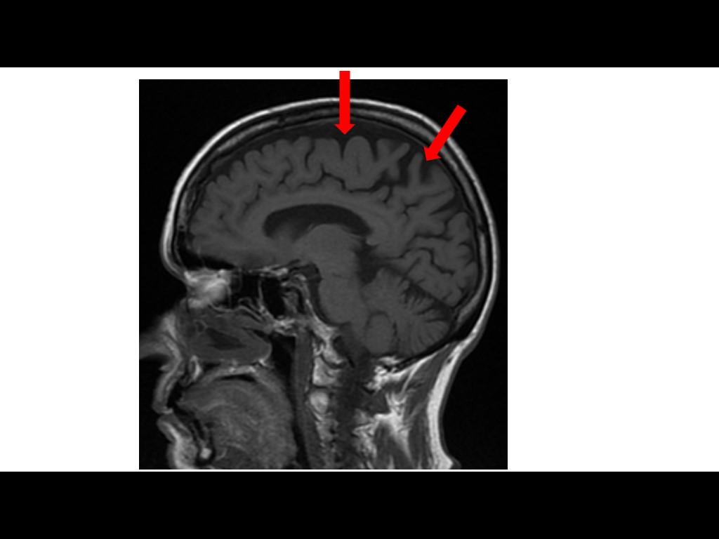Idoso deve pasar por avaliação neuropsicológica.