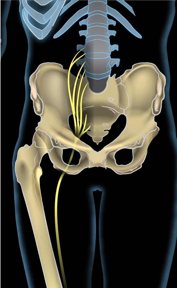 Dor no quadril descendo da perna para a substituição do joelho