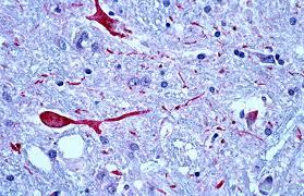 terceira idade e o sistema imunológico