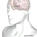 cirurgia cerebral para parkinson